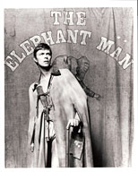 thumbnail link to original David Bowie Associated Press photograph The Elephant Man.